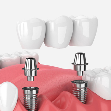 How Can Dental Implants Help You